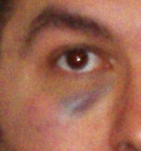 - ojo-morado